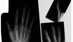 Los médicos utilizan férulas y yesos para el tratamiento de fracturas.