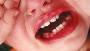 Los abscesos en los niños causan dolor severo.