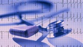 Algunos médicos ordenan un electrocardiograma como parte de un examen físico anual.