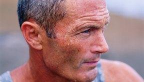 La hipernatremia puede ocurrir cuando has sudado en exceso.