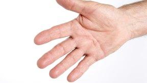 Es común que los dedos y las manos se hinchen al hacer ejercicio.