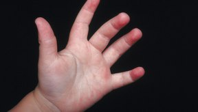 Una erupción en la mano seguida de una enfermedad es probablemente que sea la enfermedad de manos, pies y boca.