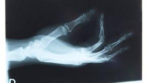 La tendinitis de Quervain produce dolor en la muñeca y se resuelve habitualmente con cirugía.