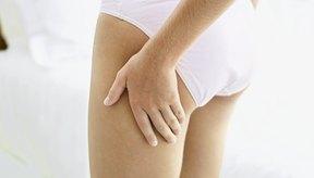 La celulitis es una molestia para alrededor del 90 por ciento de las mujeres en los países industrializados.