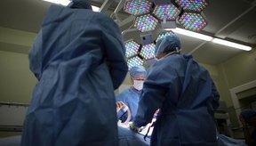 La extirpación de la vesícula es una tratamiento común para los cálculos biliares.