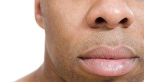 Debes bajar la inflamación de los labios, cualquiera sea la causa.