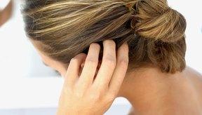 Detén la comezón, los productos en tu cocina pueden ayudarte a hidratar el cuero cabelludo seco y con picazón.