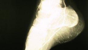 El dolor de los calambres nocturnos en el tobillo puede aliviarse con una cantidad de estiramientos sencillos.