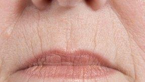 La edad juega el papel más importante en el desarrollo de las arrugas.