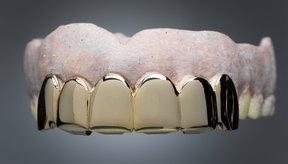 Aquí encontrarás cómo colocar una corona dental cuando no tienes acceso a un dentista.