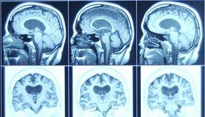 El cáncer cerebral es detectado cada vez con más frecuencia.