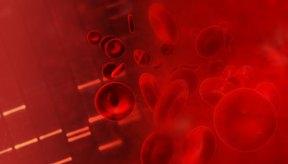 A veces la sangre que se estanca en tus piernas forma coágulos de sangre.