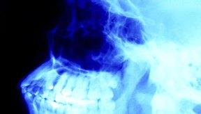 Una correcta higiene oral puede ayudarte a restaurar el calcio y esmalte perdido.