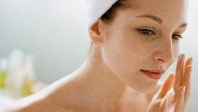 La crema de peróxido de benzoilo tópico puede reducir el acné inflamado.