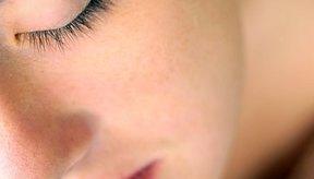 Hay maneras para mantener las manchas faciales claras y poco visibles.