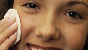 La higiene adecuada puede ayudar a prevenir las espinillas.