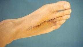 Tu médico puede aconsejarte que pruebes la cinta micropore en una cicatriz.