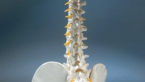 Si no se trata, el síndrome de la cola de caballo puede resultar en parálisis permanente.