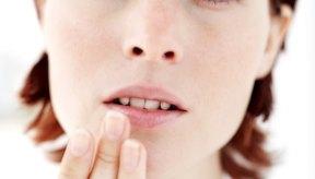 Una deficiencia de vitaminas del complejo B se puede manifestar con llagas en la boca.