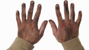 Las manos agrietadas y sucias requieren un poco de cuidado amoroso.