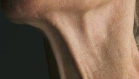 La piel flácida es el resultado de la rápida pérdida de peso.