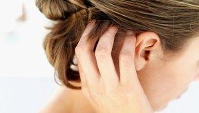 No importa el método que uses para matar a los piojos, es importante cepillar bien el cabello para eliminar los huevecillos.
