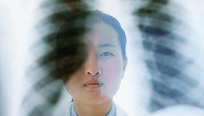 Una radiografía de tórax puede carecer de suficientes detalles para el diagnóstico.