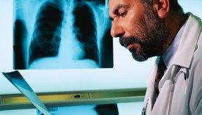 Los radiólogos con frecuencia encuentran anomalías leves en el pecho en las radiografías y tomografías computarizadas.