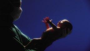 Un bebé recién nacido puede desarrollar hipoxia poco después del nacimiento.