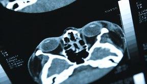 Las resonancias magnéticas son más costosas que las radiografías.