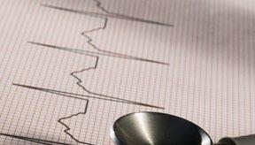 Un electrocardiograma (EKG) puede utilizarse para determinar la causa de una frecuencia cardíaca baja.