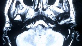 Trastornos neurológicos.
