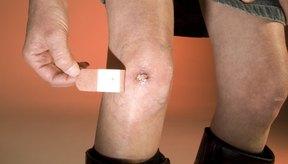 Una costra puede transformarse en una cicatriz sin el cuidado apropiado.