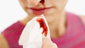 Hemorragia nasal en mujeres.