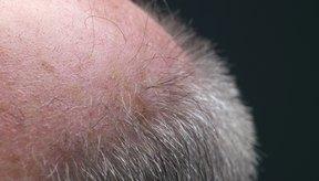 Aplicadas tópicamente, las lociones ricas en cafeína pueden retardar la pérdida del cabello.