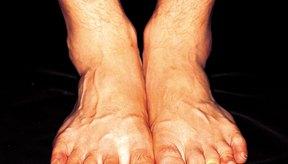 La deformidad de hueso montado se reconoce por un bulto en la parte superior del pie.