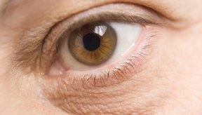 Con el tiempo, las alergias pueden causar ojeras muy oscuras bajo los ojos.