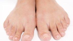 Siempre debes consultar con un médico si tienes malestar en tus pies o notas cambios en la apariencia de la piel.