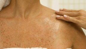 Las manchas blancas en la piel son un resultado de hipopigmentación.