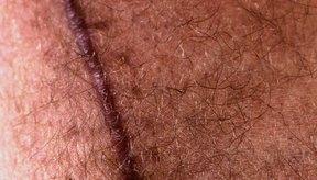 Cómo reducir el enrojecimiento de una cicatriz.