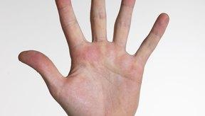 La verrugas de las manos pueden ser contagiosas.