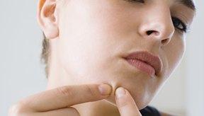 A veces inflamados y dolorosos, los quistes profundos son una forma severa de acné.