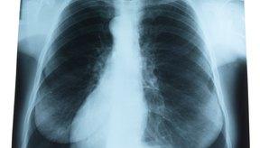 Una embolia pulmonar puede ser un problema grave.