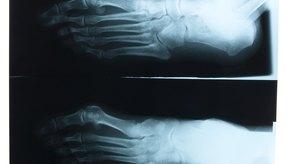 Aprende más sobre la hinchazón en la pantorrilla y tobillo izquierdos.
