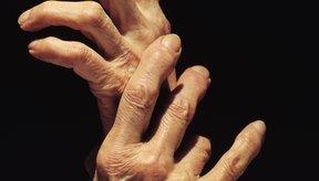 El dolor en las articulaciones puede ser causado por una deficiencia vitamínica.