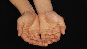 Según la Sociedad Internacional de Hiperhidrosis, esta enfermedad afecta a cerca del 3 por ciento de la población mundial.