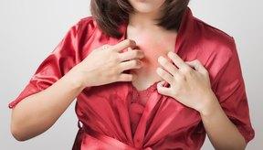 ¿Qué causa una sensación de ardor en el cuerpo?