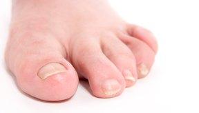 La apariencia de las uñas puede indicar el estado de tu salud en general.