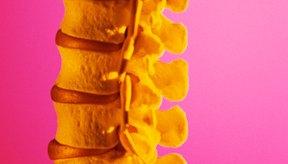 Los protocolos de terapia de laminectomía lumbar te ayudarán a fortalecer la parte inferior de la espalda y la columna vertebral.