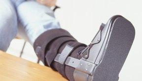 Tienes que empezar a hacer ejercicio inmediatamente después de una fractura en la meseta tibial.